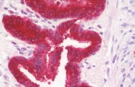 Immunohistochemistry (Formalin/PFA-fixed paraffin-embedded sections) - Anti-GGCT antibody - C-terminal (ab191170)