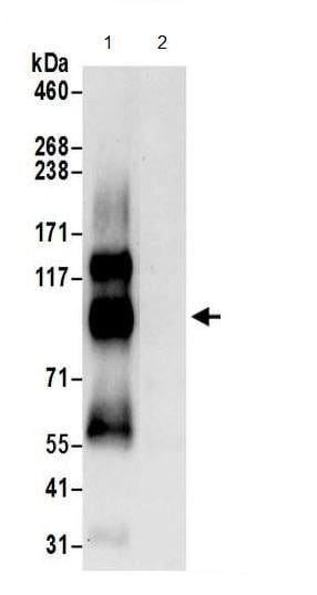 Immunoprecipitation - Anti-Endoglycan antibody (ab191173)