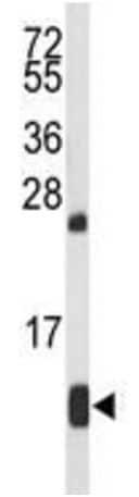 Western blot - Anti-Hemoglobin antibody (ab191183)