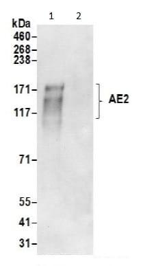 Immunoprecipitation - Anti-AE2 antibody (ab191189)