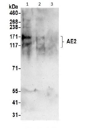 Western blot - Anti-AE2 antibody (ab191189)