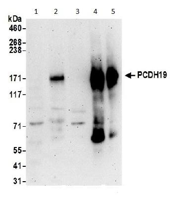 Western blot - Anti-PCDH19 antibody - C-terminal (ab191198)