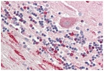 Immunohistochemistry (Formalin/PFA-fixed paraffin-embedded sections) - Anti-NP-I antibody (ab191201)