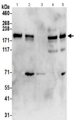 Western blot - Anti-PAR-3/PARD3 antibody (ab191204)