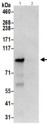 Immunoprecipitation - Anti-CNNM4 antibody (ab191207)