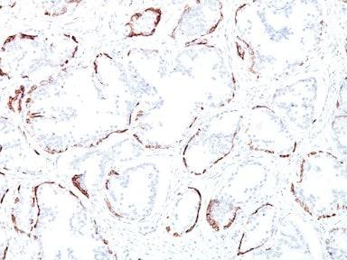 Immunohistochemistry (Formalin/PFA-fixed paraffin-embedded sections) - Anti-Cytokeratin antibody [34BE12] (ab191208)