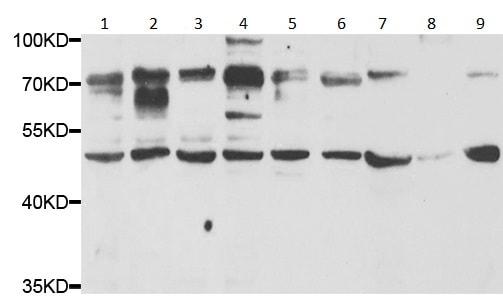 Western blot - Anti-Granulin antibody (ab191211)