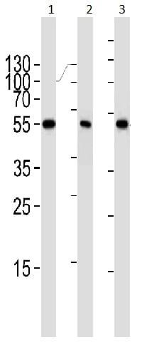 Western blot - Anti-PPAR alpha antibody [1331CT894.186.143] (ab191226)