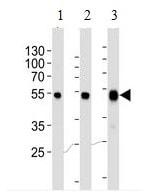 Western blot - Anti-PAH antibody [717CT21.1.1] (ab191234)