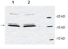 Western blot - Anti-Pin1 antibody (ab191271)