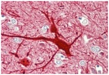 Immunohistochemistry (Formalin/PFA-fixed paraffin-embedded sections) - Anti-Neurokinin B  antibody (ab191273)