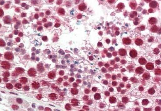 Immunohistochemistry (Formalin/PFA-fixed paraffin-embedded sections) - Anti-hnRNP A2B1 antibody (ab191277)