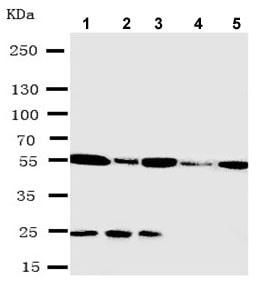 Western blot - Anti-Syndecan 3 antibody - N-terminal (ab191308)