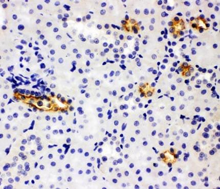 Immunohistochemistry (Formalin/PFA-fixed paraffin-embedded sections) - Anti-SLC12A1/NKCC2 antibody - N-terminal (ab191315)