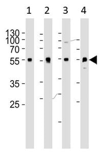 Western blot - Anti-alpha 1d Adrenergic Receptor antibody - N-terminal (ab191317)