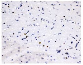 Immunohistochemistry (Formalin/PFA-fixed paraffin-embedded sections) - Anti-Smad Interacting Protein 1 antibody - C-terminal (ab191364)