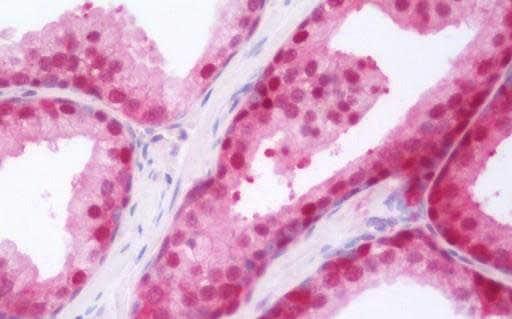 Immunohistochemistry (Formalin/PFA-fixed paraffin-embedded sections) - Anti-Retinoic Acid Receptor gamma antibody (ab191368)