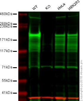 Western blot - Anti-Dnmt1 antibody [EPR3521(2)] - BSA and Azide free (ab191382)