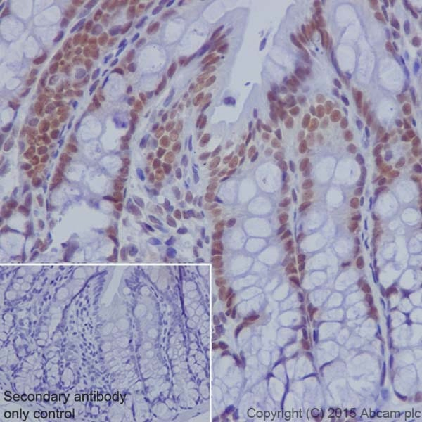 Immunohistochemistry (Formalin/PFA-fixed paraffin-embedded sections) - Anti-KDM2A antibody [EPR18602] (ab191387)