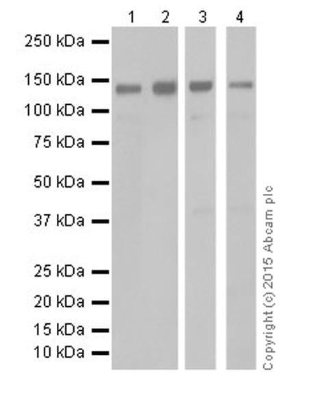 Western blot - Anti-KDM2A antibody [EPR18602] (ab191387)