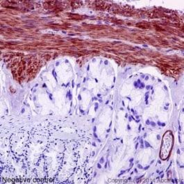 Immunohistochemistry (Formalin/PFA-fixed paraffin-embedded sections) - Anti-MYL9 [EPR13012(2)] antibody (ab191393)