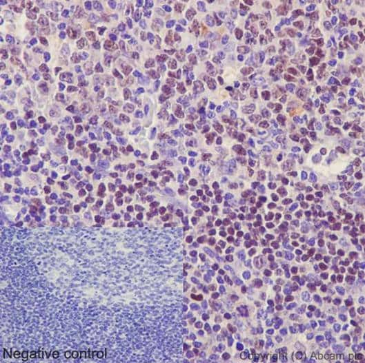 Immunohistochemistry (Formalin/PFA-fixed paraffin-embedded sections) - Anti-Ctip1/BCL-11A antibody [EPR14943-44] (ab191401)