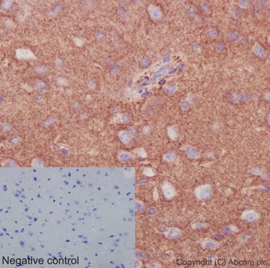 Immunohistochemistry (Formalin/PFA-fixed paraffin-embedded sections) - Anti-Septin 8 antibody [EPR16099] (ab191404)