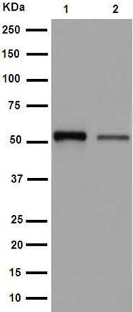 Western blot - Anti-Septin 8 antibody [EPR16099] (ab191404)