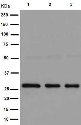 Western blot - Anti-TXNDC9 antibody [EPR15239] (ab191405)
