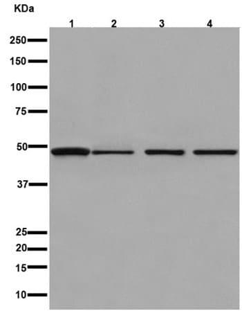 Western blot - Anti-PAH antibody [EPR12381] - C-terminal (ab191415)