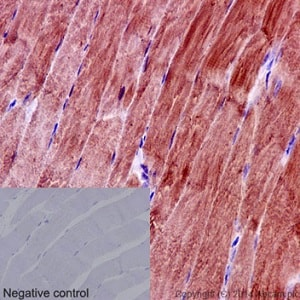 Immunohistochemistry (Formalin/PFA-fixed paraffin-embedded sections) - Anti-eIF3g antibody [EPR16146] - N-terminal (ab191422)
