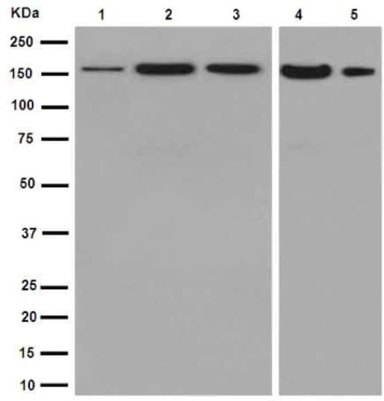 Western blot - Anti-ADCY9/AC9 antibody [EPR16188] (ab191423)