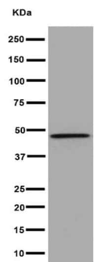 Western blot - Anti-CCN3 antibody [EPR8781(3)] (ab191425)