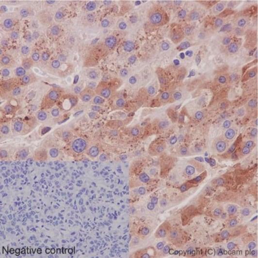 Immunohistochemistry (Formalin/PFA-fixed paraffin-embedded sections) - Anti-CCN3 antibody [EPR8781(3)] (ab191425)