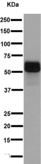 Western blot - Anti-MEF2C antibody [EPR1452(N)] (ab191428)