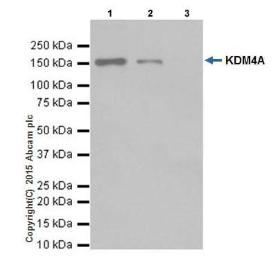 Immunoprecipitation - Anti-KDM4A / JHDM3A / JMJD2A antibody [EPR18466] (ab191433)