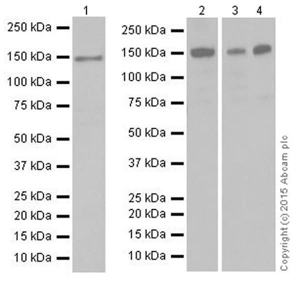 Western blot - Anti-KDM4A / JHDM3A / JMJD2A antibody [EPR18466] (ab191433)