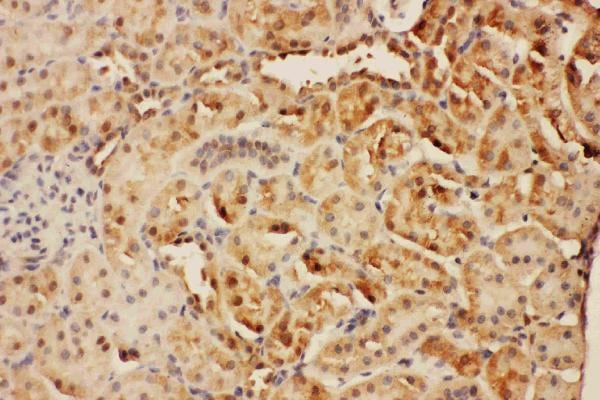 Immunohistochemistry (Formalin/PFA-fixed paraffin-embedded sections) - Anti-CISH/CIS antibody - C-terminal (ab191447)