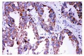 Immunohistochemistry (Formalin/PFA-fixed paraffin-embedded sections) - Anti-DISC1 antibody (ab191455)