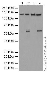 Western blot - Anti-CC2D1A antibody [EPR18421] (ab191472)