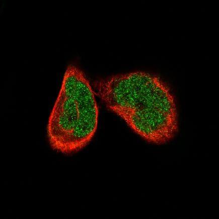 Immunocytochemistry/ Immunofluorescence - Anti-ATF3 [CL1685] antibody (ab191513)