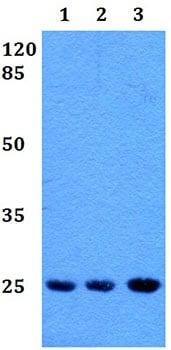 Western blot - Anti-RAB39 antibody (ab191519)