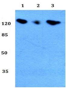 Western blot - Anti-Telomerase reverse transcriptase antibody (ab191523)