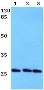 Western blot - Anti-PRX-2 antibody (ab191535)