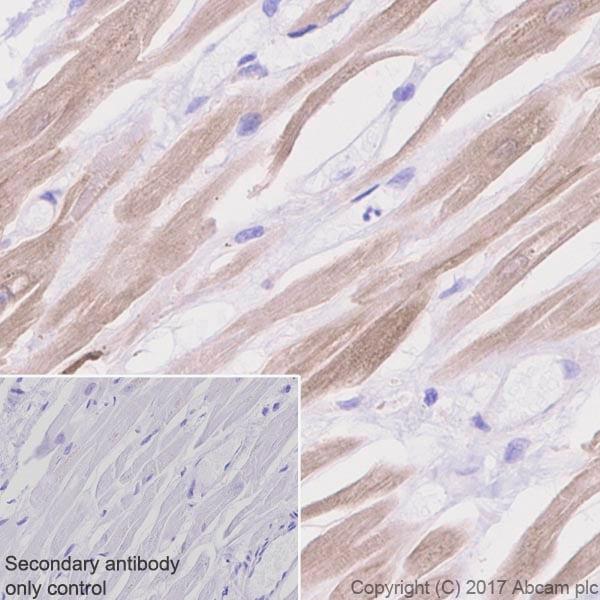 Immunohistochemistry (Formalin/PFA-fixed paraffin-embedded sections) - Anti-CaMKII delta antibody [EPR13095] - BSA and Azide free (ab191588)
