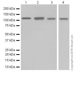 Western blot - Anti-NFkB p100/NFKB2 antibody [EPR18756] (ab191594)