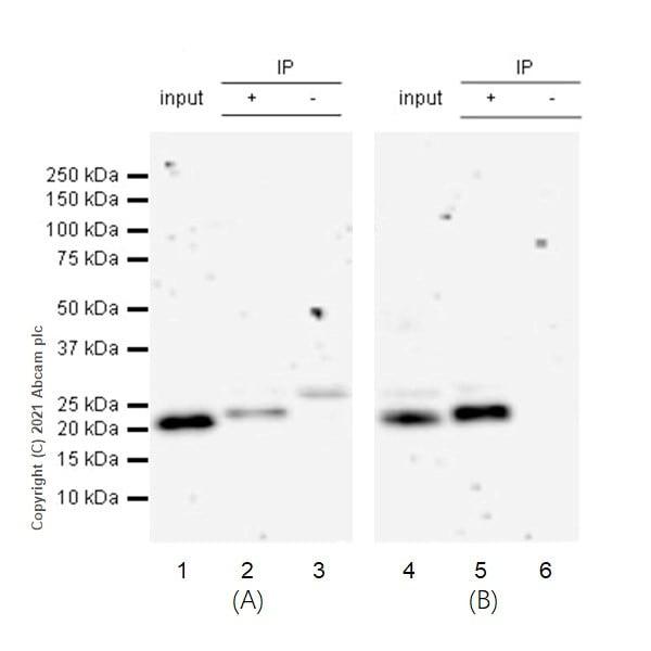 Immunoprecipitation - Anti-HRAS + KRAS antibody [EPR18713] (ab191595)