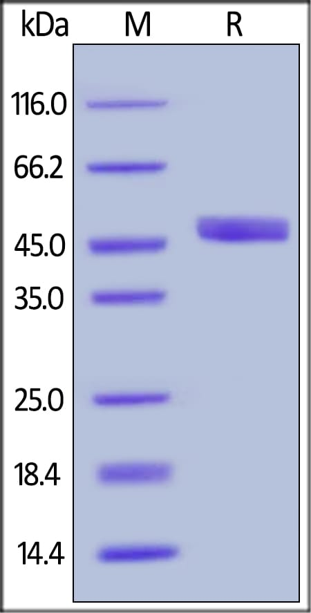 SDS-PAGE - Recombinant human proCathepsin D protein (ab191632)
