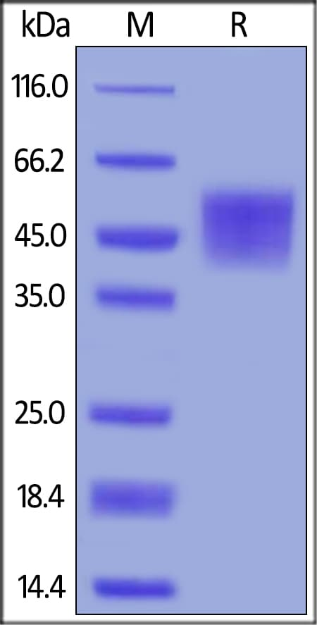 SDS-PAGE - Recombinant human B7H4 protein (ab191634)