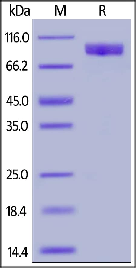 SDS-PAGE - Recombinant human TYRO3 protein (Fc Chimera) (ab191642)